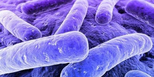 Legionella in QLD Hospitals and Aged Care
